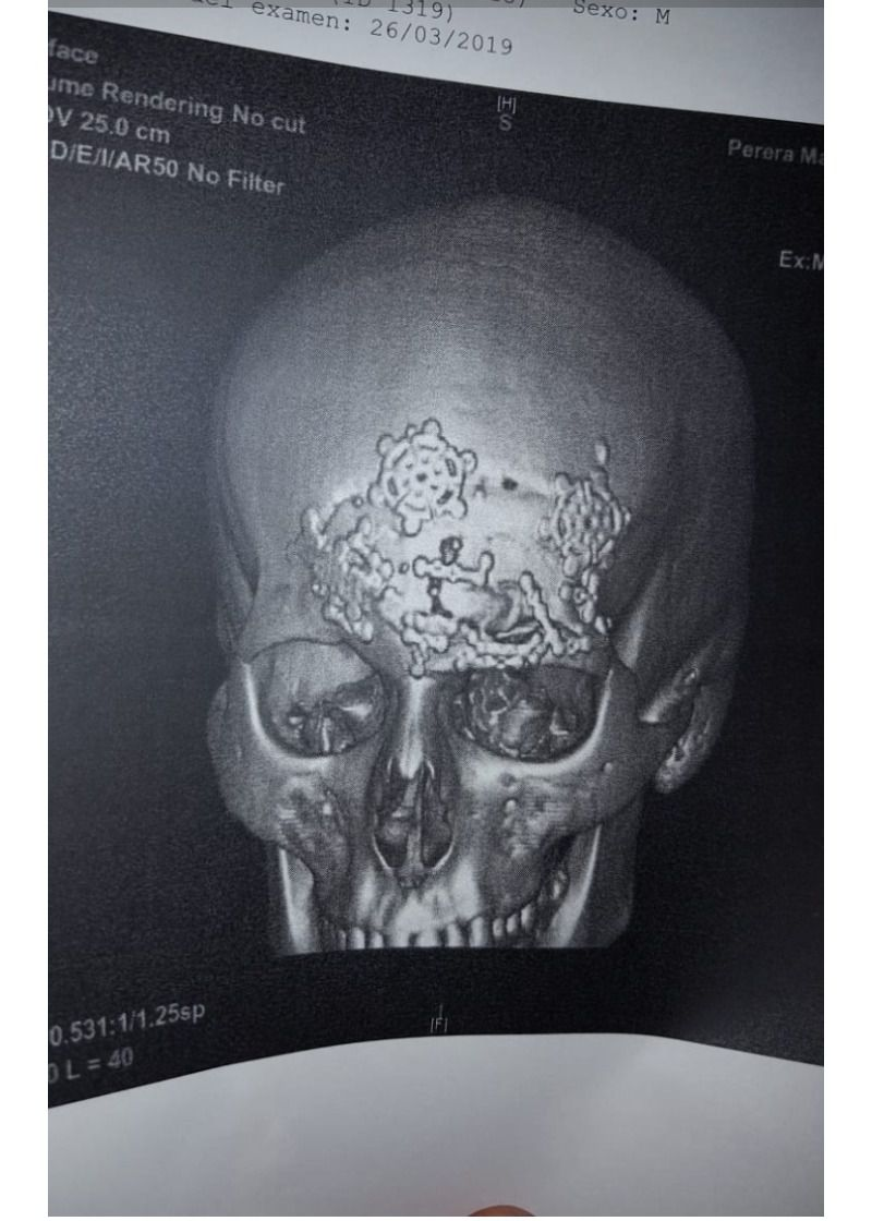 Radiografía Manuel Perera