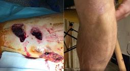 Gonzalo Caballero, el antes y el después de un cornalón